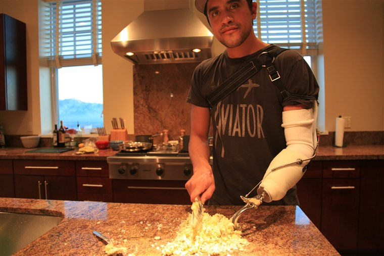 Koch Eduardo Garcia cooks for the first time with his hand prosthetic.