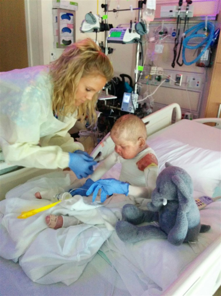 Anton, who was abandoned at a Russian hospital, underwent a bone marrow transplant at the University of Minnesota Masonic Children's Hospital.