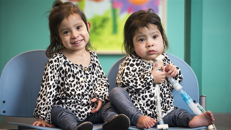سابقا conjoined twins Knatalye Hope and Adeline Faith Mata visiting Texas Children's a few weeks before the one year anniversary of their historic separation surgery.