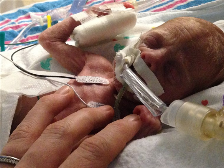 Wyatt was born four months premature. His mom says she was
